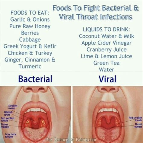 comparison between viral and bacterial diseases picture 11