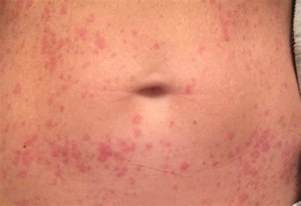 skin rashes on stomache picture 5