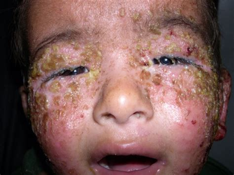 symptoms of herpes of the mouth picture 7