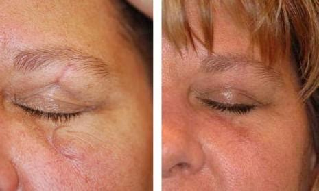 revitol before and after pictures picture 6