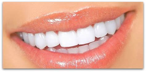 white teeth picture 9