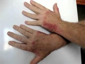 burning sensitive skin picture 7