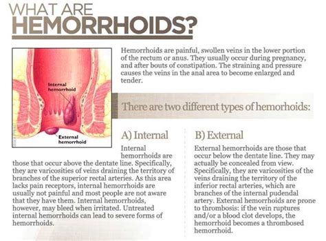 what is a hemorrhoid picture 1