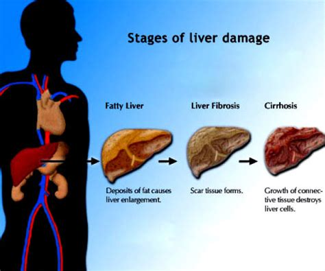 fatty cirrhosis of the liver picture 14