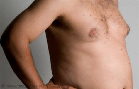 can motilium cause breast growth in men picture 10