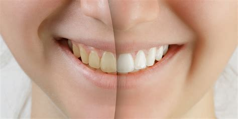 minneapolis teeth whitening picture 5