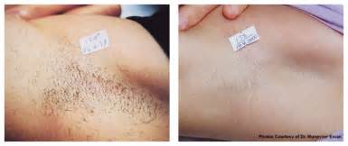 hair removal for women genital area clinics in picture 7