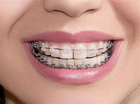 clear teeth brace picture 6