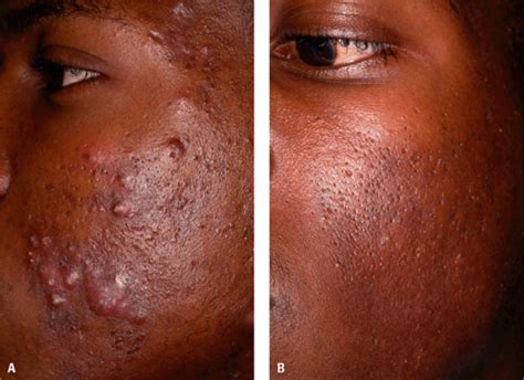 creams for acne in african americans picture 3