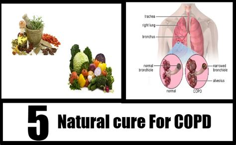 natural cure for copd picture 2