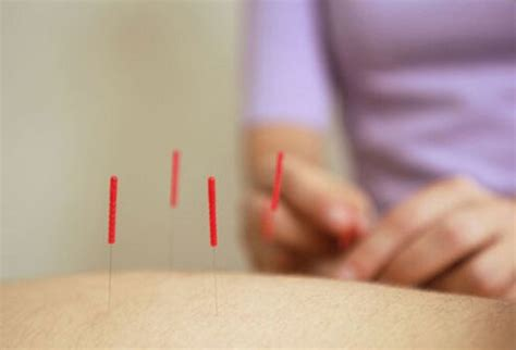 anyone have success with acupuncture for uterine blood picture 13