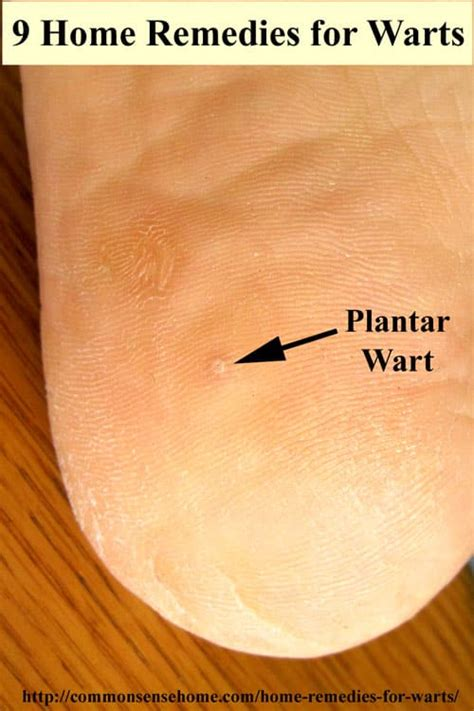 planters warts from pedicures picture 10