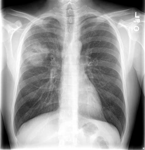 complex thyroid nodule picture 17