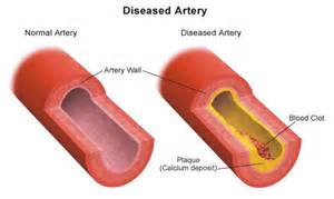 blood vessel or arteries blocked from calcium any picture 3