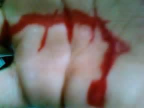 el bleeding picture 5