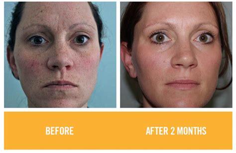 care of skin pore picture 17