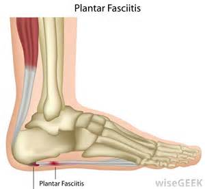 plantar picture 13