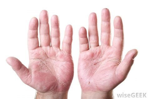 Blood circulation to hands symptoms picture 3