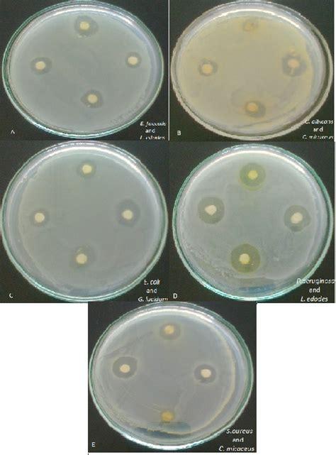 thesis introduction of antibacterial herbal handwash picture 11