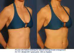 breast enhancement using fat picture 2