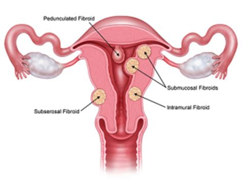 kedi product for shrinking fibroid picture 9