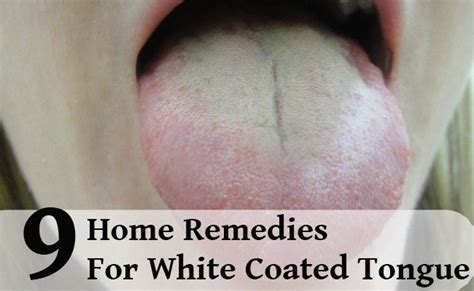 white coated tongue yeast picture 7