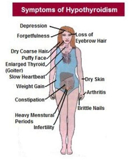 symptoms skin problems with hypothyroidism picture 17
