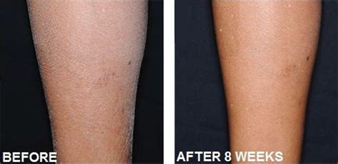 dry skin on legs after menopause picture 7