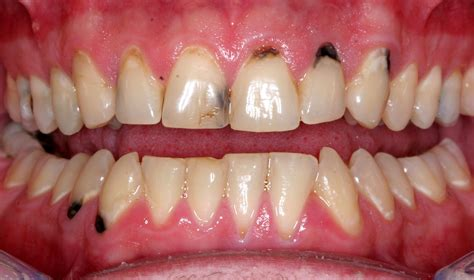 ruin teeth picture 7