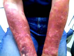 pictures of antibacteria on skin picture 5
