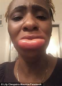 swollen lower lip picture 1