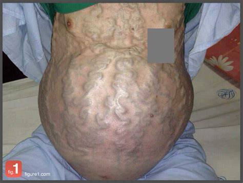 cirrhosis picture 5
