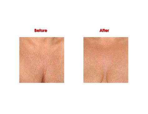 wrinkle skin after hysterectomy picture 11