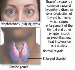 causing hyperthyroidism picture 5