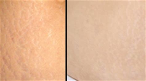 can white stretch marks appear without being another picture 6