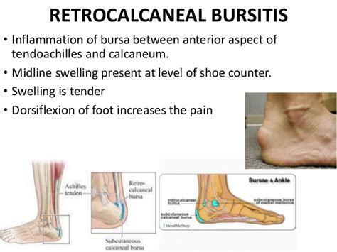metatarsal pain relief picture 10