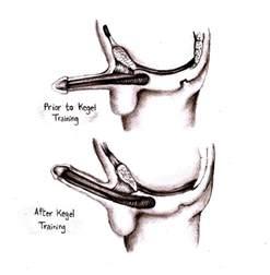 exercises for erectile dysfunction men picture 1