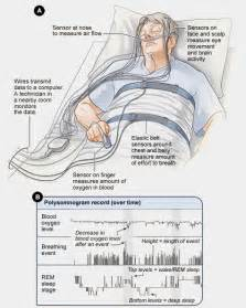 learn how to hook up electrodes for sleep study picture 1