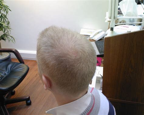 new hair loss breakthrough 2014 picture 6