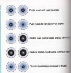 hoodia pseudotumor cerebri picture 3