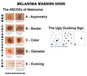 best source of raspex cancer skin cream picture 5