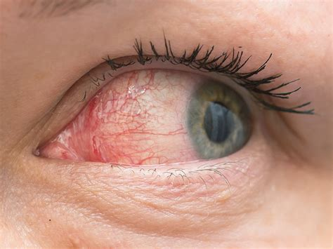 dry, red eyes, liver disease picture 7