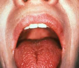 dry mouth and throat while sleeping picture 7
