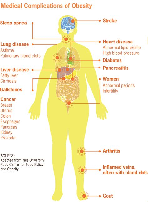 Cholesterol obesity picture 18