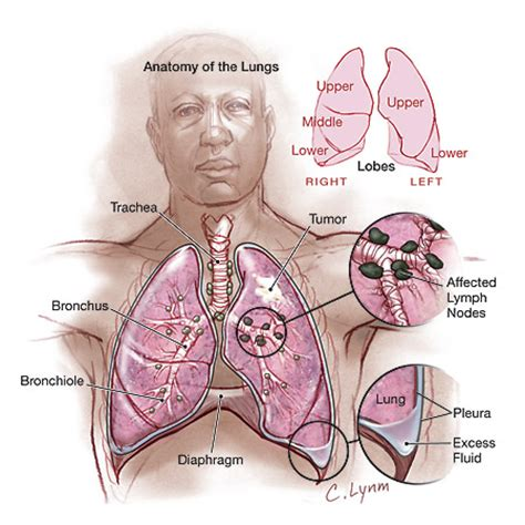 bladder cancer spreads to lungs picture 5