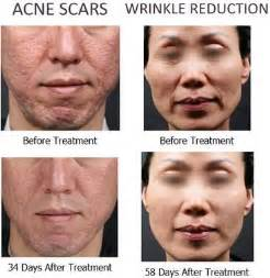 high blood pressure and acne spots on skin picture 13