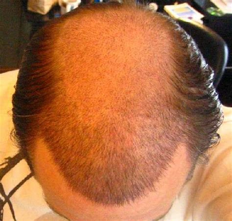 genital wart hair growth picture 7