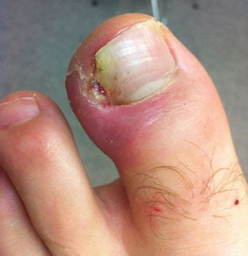 toenail removal surgery fungus picture 10