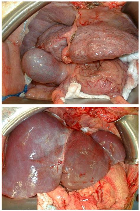 alcoholic fatty liver disease symptoms picture 9