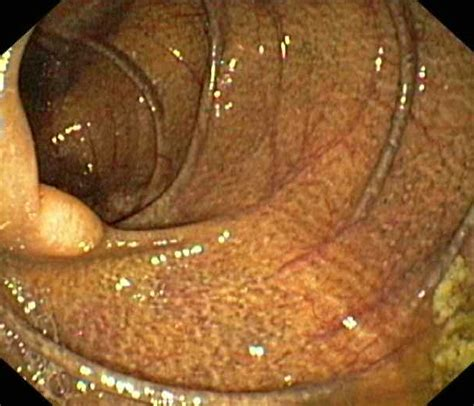 what is melanosis in the colon picture 8